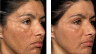 Tretinoína furoato hidroquinona para acne creme mometasona