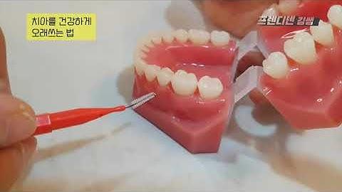 치간칫솔 치실 사용법 : 임플란트 하신 분들 꼭 알고계세요. (근데..잘못 사용하면 더 안좋아질수도..)