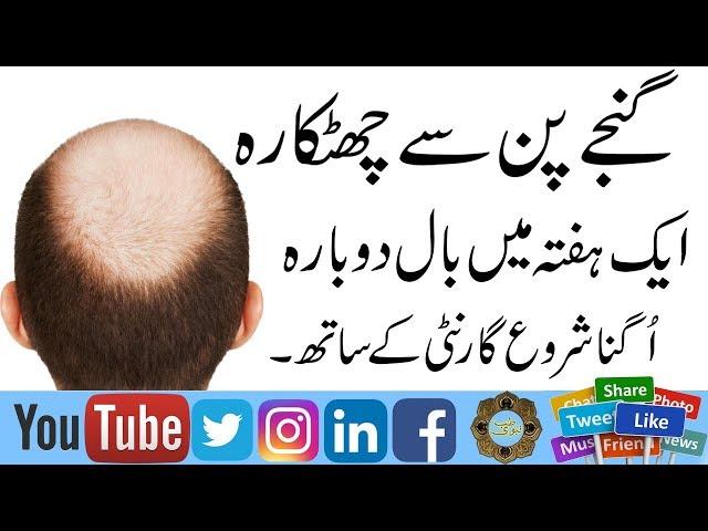 GanjaPan Ka Ilaj | Aik Hafte main GanjaPan ka ilaj | Hair loss Treatment | sar ke Naye Baal Ugana |