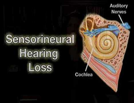 Understanding the Hearing Impaired (Helping #4)