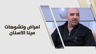 د. خالد عبيدات - امراض وتشوهات مينا الاسنان