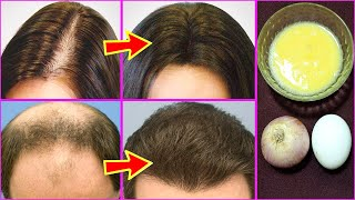 Onion Juice And Egg Mask For Hair Growth And Thickness Onion Juice For Hair Growth