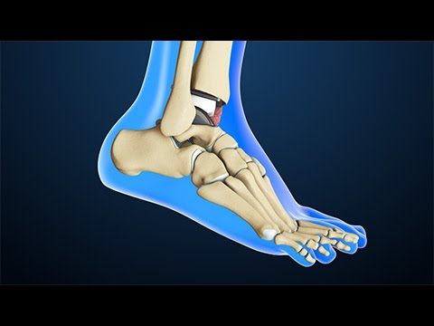 Total Ankle Replacement Surgery   Nucleus Health