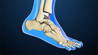 Total Ankle Replacement Surgery | Nucleus Health Video
