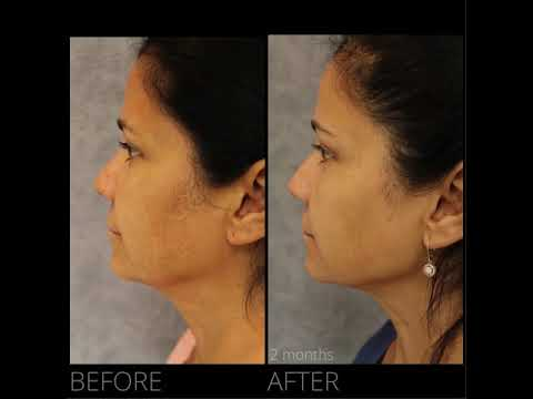 [TRANSFORMATION] Early FACEtite results by Dr. Erick Sanchez in Baton Rouge