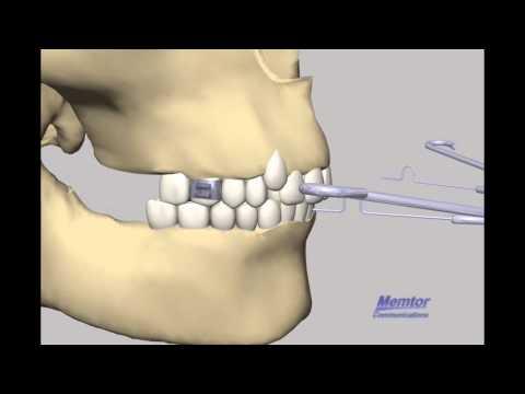Head gear- Orthodontic Head gear