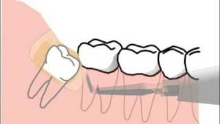 Зуб мудрости в анимационном фильме(в коротком мультфилме мы хотим вам показать как удаляется зуб мудрости., 2009-11-18T13:54:35.000Z)