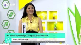 Göz ətrafı estetikası - Həkim İşi 27.08.2018