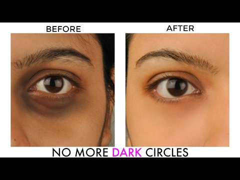 GET RID OF UNDER EYE DARK CIRCLES & BAGS : NATURAL HOME REMEDIES