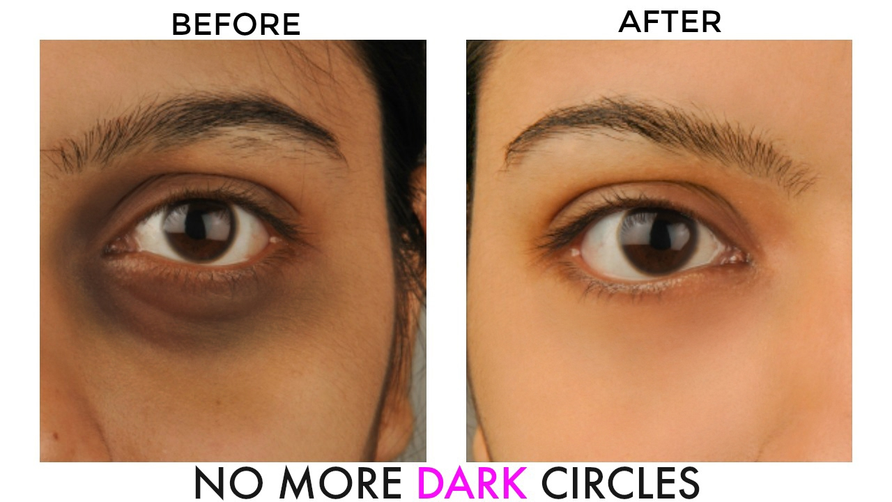 GET RID OF UNDEREYE DARK CIRCLES & BAGS : NATURAL HOME ...