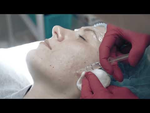 Мезотерапия в клинике effi. Рассказывает врач-косметолог Ирина Беер