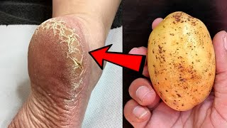 Eliminate Cracked Heels and get White and Smooth Feet / Magic Cracked Heels home remedy
