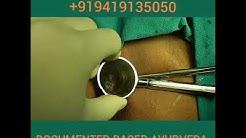 PILES. AYURVEDA TREATMENT. DR. SACHIN GUPTA. 9419135050
