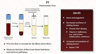 Hemostasis: Lesson 4 - Tests (INR, PTT, platelets, fibrinogen, D-dimer)
