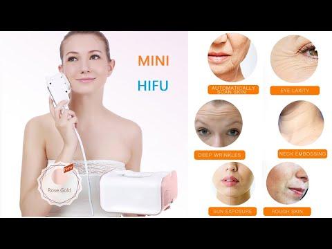 portable home use HIFU machine HIFU face lift machine - YouTube