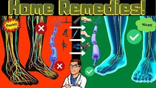 Peripheral Neuropathy Home Remedies [Leg & Foot Nerve Pain Treatment]