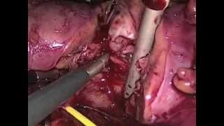 nephrectomie partielle polaire inferieure