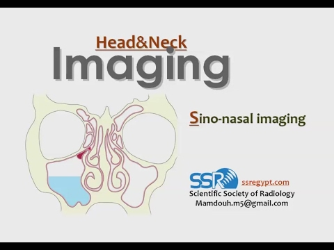 Imaging of paranasal Sinuses - Prof Dr. Mamdouh Mahfouz (In