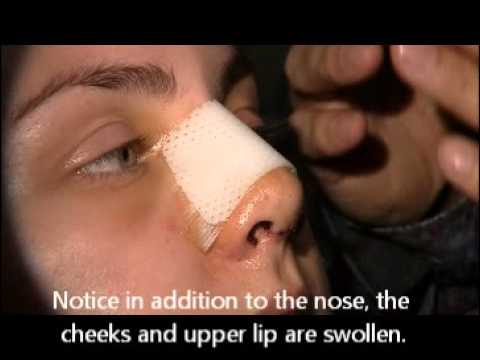 Cleaning your nose after Rhinoplasty