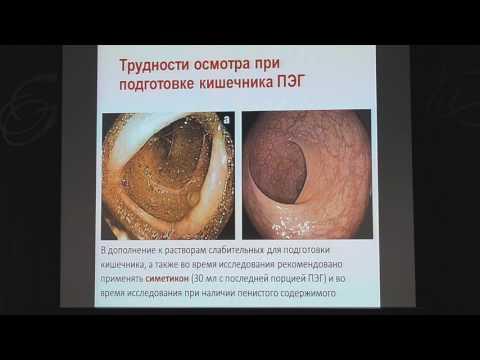 Правильная подготовка к колоноскопии кишечника