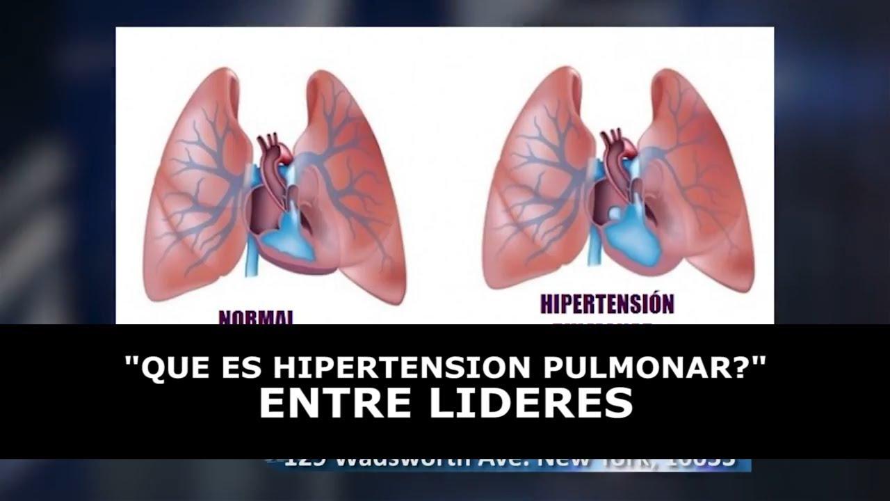 QUE ES HIPERTENSION PULMONAR? - YouTube