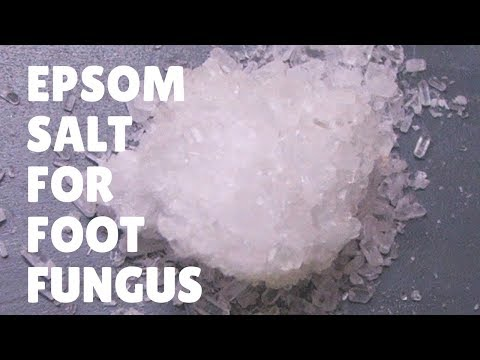 Foot Fungus Miracle Treatment : Epsom Salt