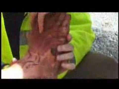 LotR: FotR LE - Astin Cuts His Foot