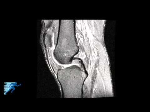 How to Read Knee MRI of Radial Meniscus Tear | Sports Medicine Knee Specialist | Colorado thumbnail