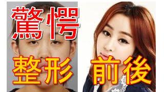 整形 韓国美人失敗画像集 え!こんなに違うの? 外科手術 アンシネ整形外科前 検索動画 24