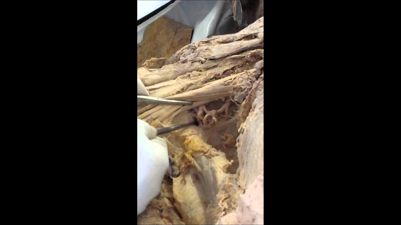 Gross anatomy dissection videos