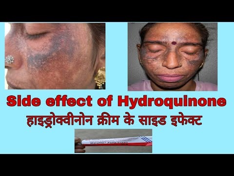 Hydroquinon cream side effects in hindi..malalite fort cream review