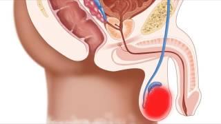 Почему у мужчин болят яички?