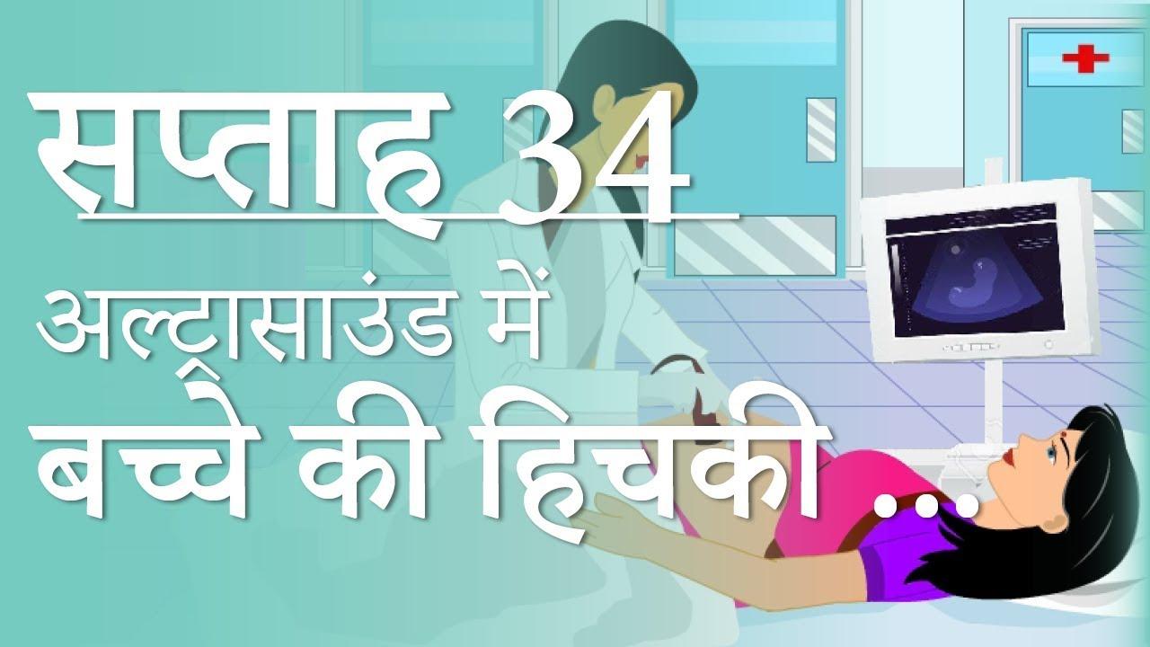 Pregnancy | Hindi | Week by Week - Week 34 | गर्भावस्था - सप्ताह 34 - Month  8