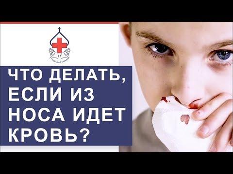 👃 Носовые кровотечения: причины, первая помощь, лечение. Носовые кровотечения причины. 12+