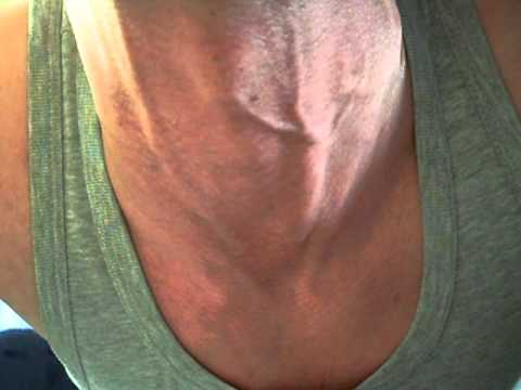 my neck veins (front) - YouTube