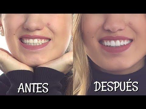 Mi diseño de sonrisa | Natalia Merino