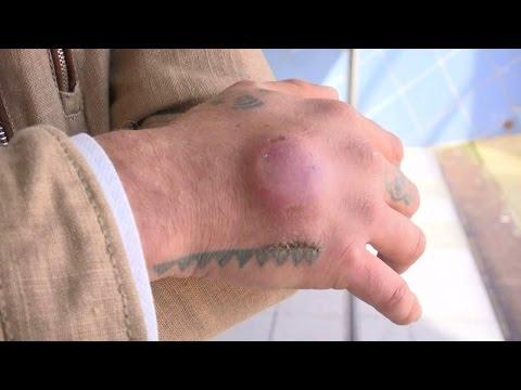 'Implanteren OV-chip was pijnlijk'