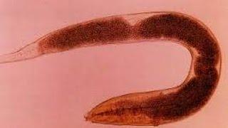 nu vă puteți infecta cu veruci genitale anticorpi împotriva antigenelor helmintice