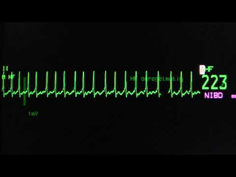 atrial fibrillation with rapid ventricular rate on an ECG heart monitor