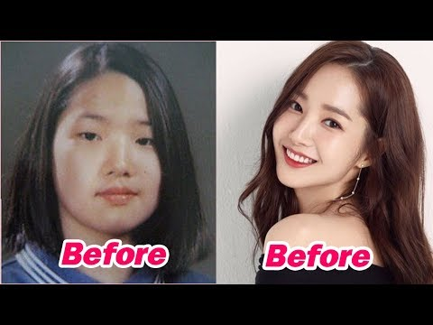 13 Korean Celebrities Who Undergo Plastic Surgery