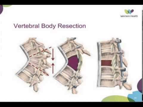 Arthropathy Of The Spine By Dr Devinder Garewal