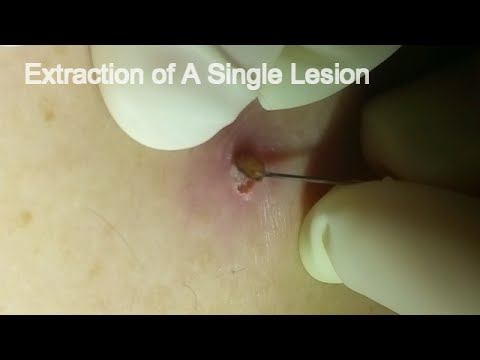 Extraction Of A Single Lesion