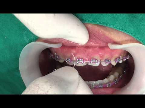 Ep.8 จัดฟันแล้วเหงือกบวม