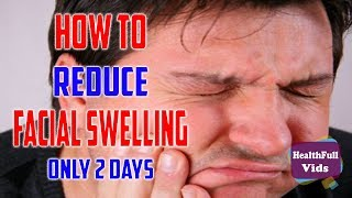 Facial Swelling | How to Reduce Facial Swelling in 2 Day