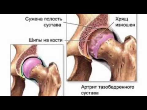 Артрит и артроз в чем разница - симптомы и отличия