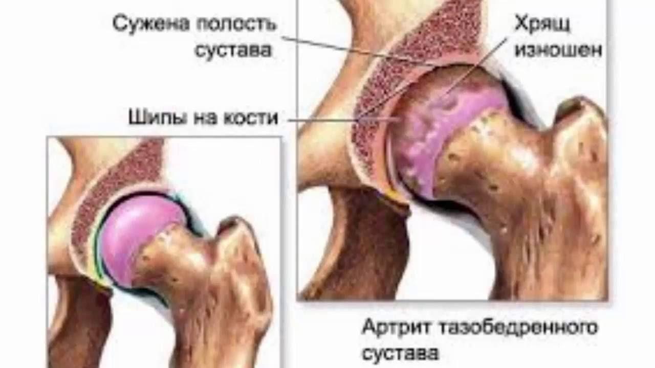 Артроз артрит коленного сустава лечение