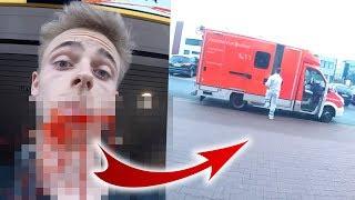 FAIL! Unfall.. Krankenwagen muss kommen 😩