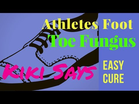 Easy Cure #Athletes #Foot and #Foot #Fungus