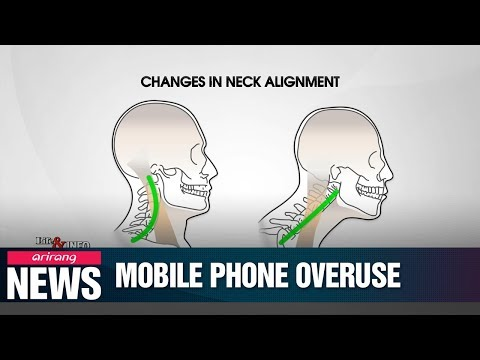 What mobile phone overuse does to your neck and eyes
