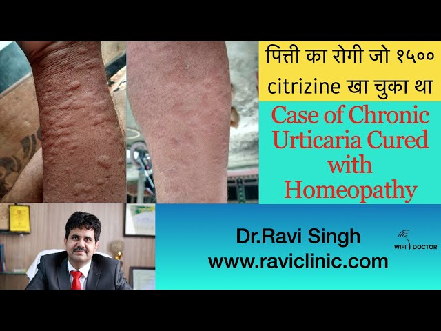 Urticaria Case where patient consumed more than 1500 Citrizine Tablets